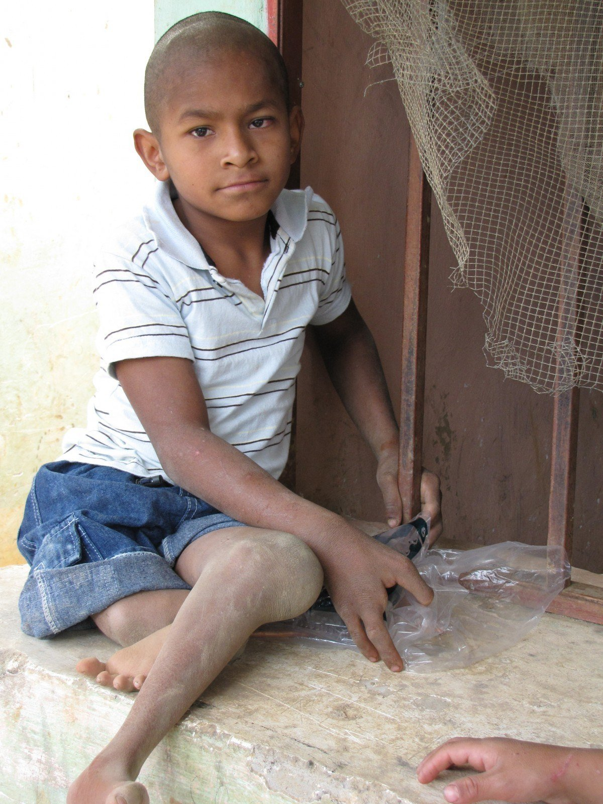 A beggar child in Honduras